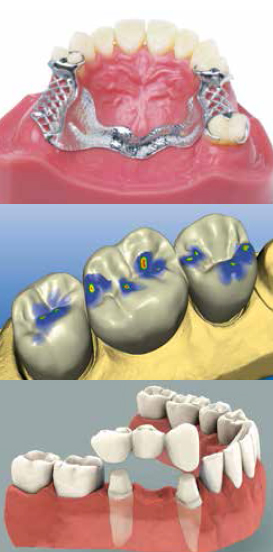 Dental Lab in Brampton - dentures